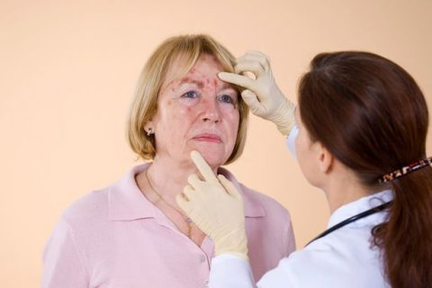 doctor-examining-the-facial-skin-rash-of-a-patient