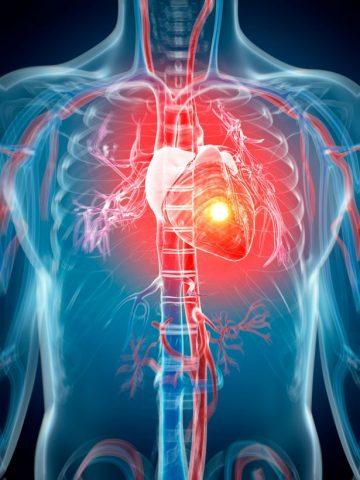 PROD-Human-heart-attack-artwork